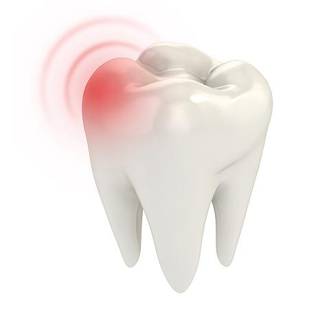 zähne ziehen wie lange schmerzen